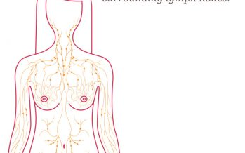 Lymph Nodes Cancer