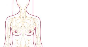 Lymph Nodes Cancer